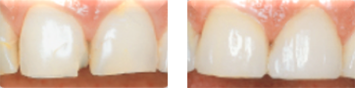 All-ceramic veneers